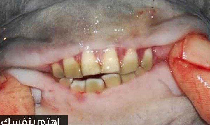أسنان سمكة الباكو