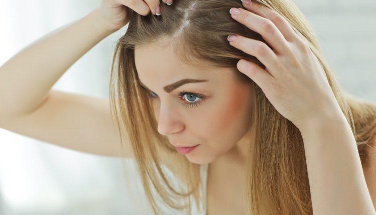 علاج قشرة الشعر نهائيا