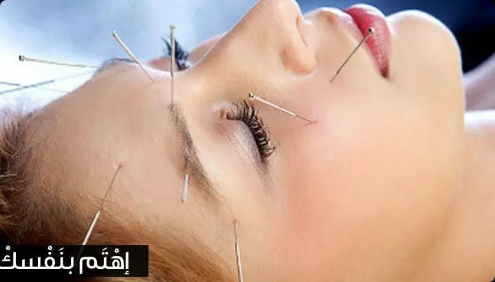 العلاج بالإبر الصينية
