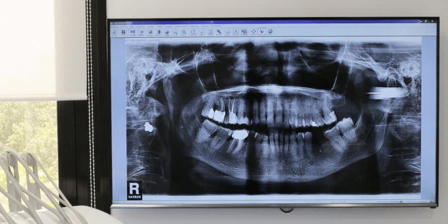 أشعة الأسنان